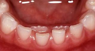 Kids Tooth Extractions in Brighton