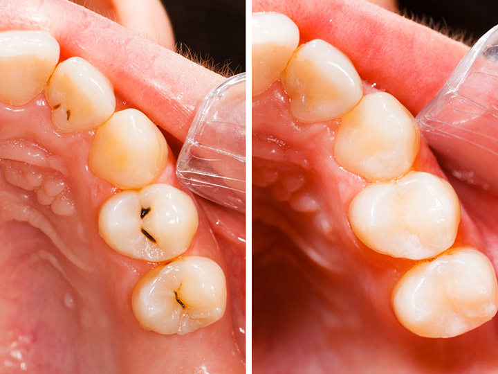 Tooth Fillings Near 80601