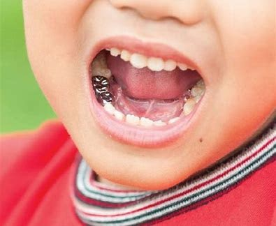 Dental Crowns for Kids in Brighton